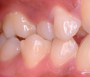 """""""Afección psicológica del paciente quirúrgico en ortodoncia"""" (Parte I)"""