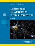 Enfermedad de Alzheimer y otras demencias.