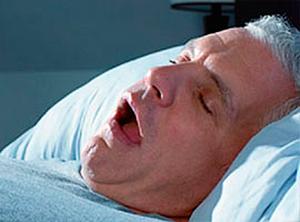 Síndrome del Respirador Bucal. Tratamiento.