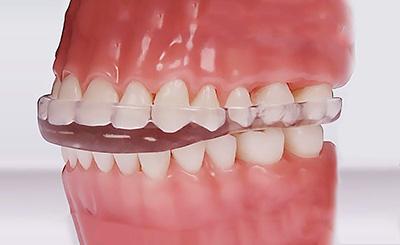 La estabilización mandibular y la precisión articulatoria