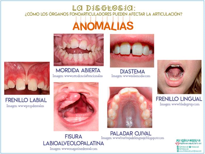 Anomalías más comunes