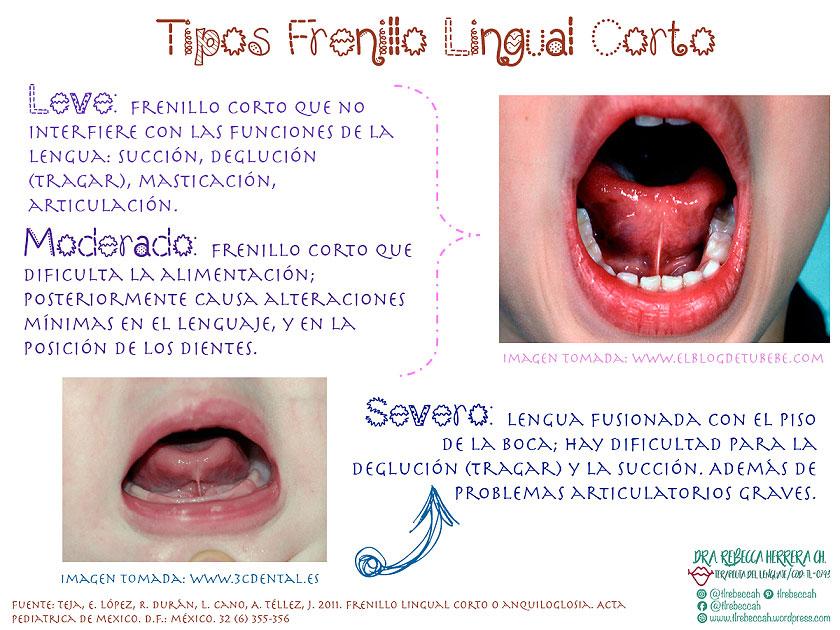 Tipos de frenillo lingual corto