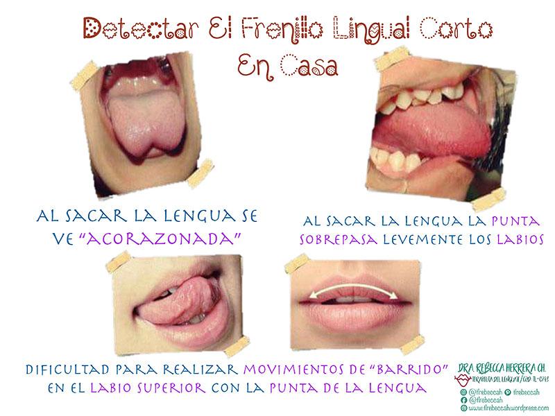 Detectar frenillo lingual
