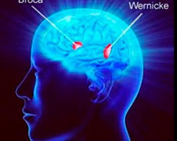 Enfoque multifactorial en la neuro-rehabiitación fonoaudiológica. Presentación de un caso con afasia (Parte II)
