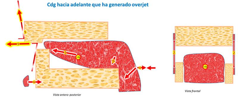 Fig. 6: Lengua con cdg hacia adelante y overjet genera grandes desequilibrios musculares y óseos.