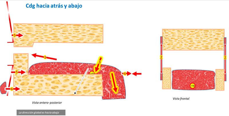 Fig. 7: Lengua con cdg hacia abajo que lleva a la lengua a planos inferiores.