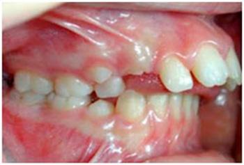 Disglosias mandibulares