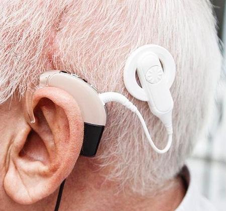 Calidad de vida en adultos pos-lingüísticos usuarios de implante coclear. Artículo de revisión (Parte III)