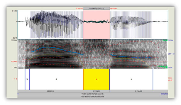 Figura 1. Espectrograma de banda ancha de la producción de la palabra casa
