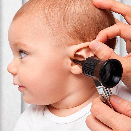 ¿Es necesario que el niño con hipoacusia aprenda a escuchar y a hablar a una edad muy temprana?