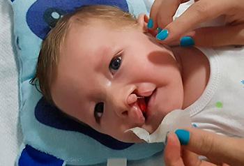 Intervención fonoaudiológica en un bebé con diagnóstico pre-natal de fisura de labio (Parte II)