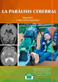 La parálisis cerebral. Diagnóstico e intervención logopédica