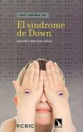 El síndrome de Down. ¿ Qué sabemos de ?